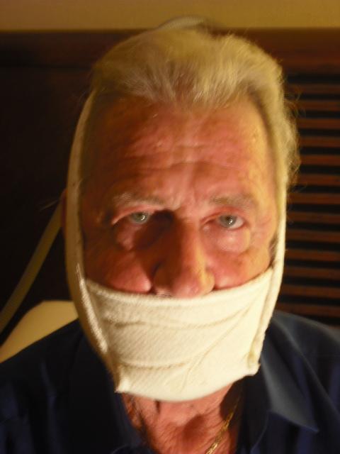 Radical Chin Strap What Do You Think Cpaptalk Com